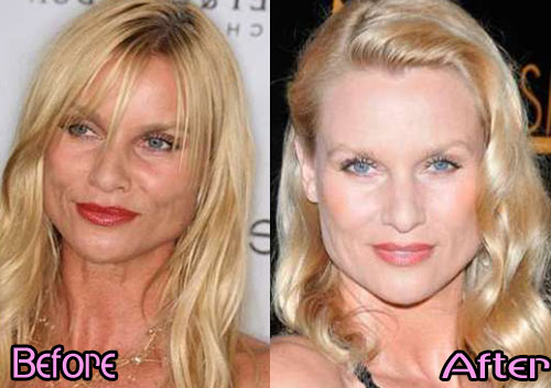 when did plastic surgery became popular photo - 1