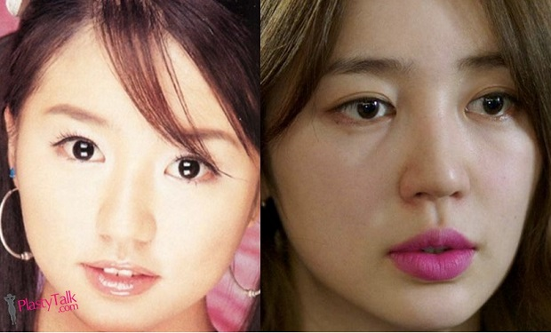 when did plastic surgery start photo - 1
