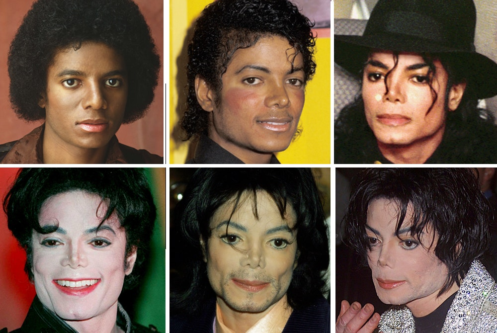 why did michael jackson get plastic surgery photo - 1