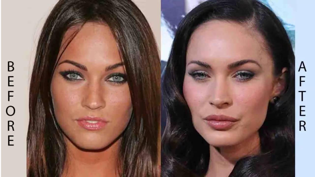 why plastic surgery is good photo - 1