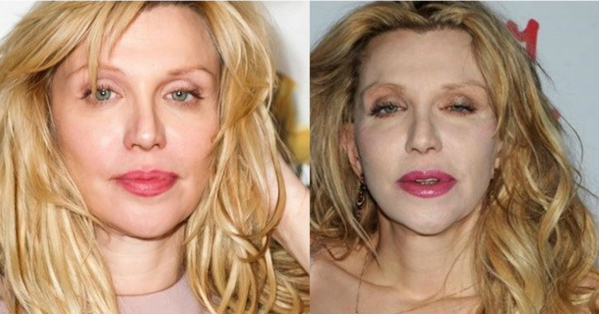 worst celebrity plastic surgery photo - 1