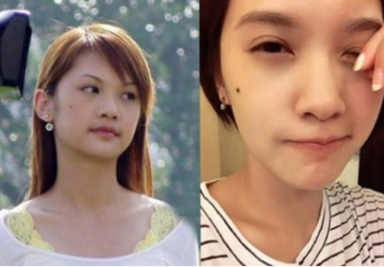 yang yang plastic surgery photo - 1