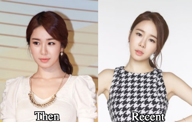 yoo in na before plastic surgery photo - 1