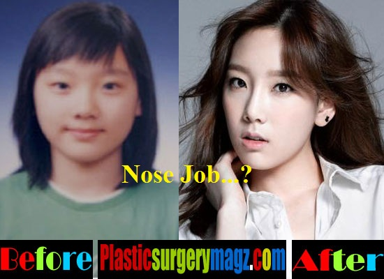yoona plastic surgery photo - 1
