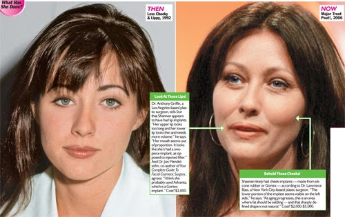 Shannen doherty plastic surgery