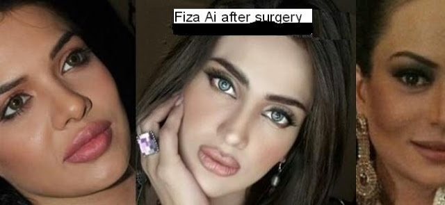 actresses with bad plastic surgery photo - 1