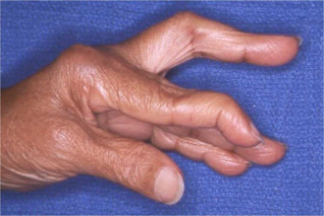 advanced hand and plastic surgery photo - 1