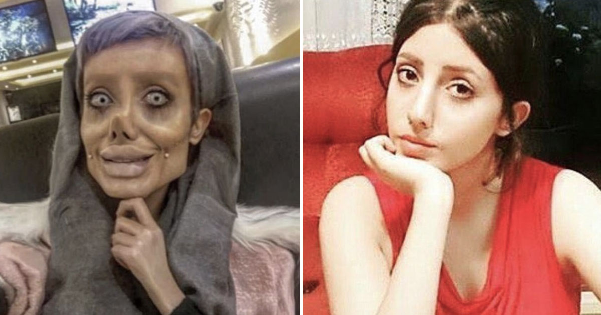 angelina jolie before and after plastic surgery photo - 1