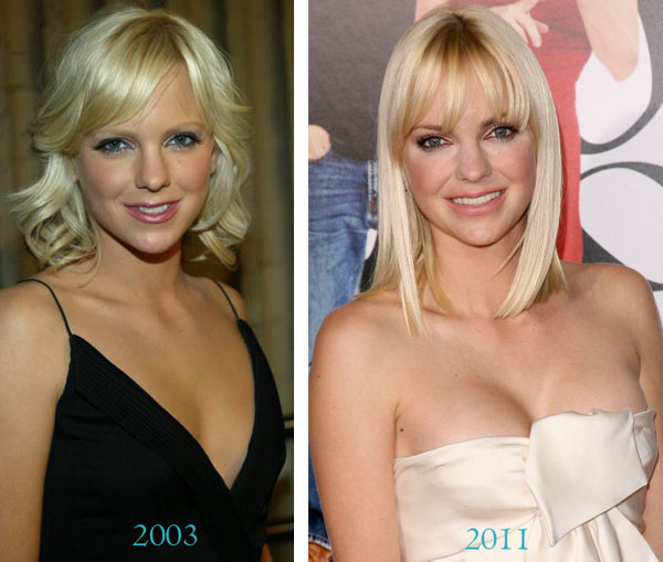 anna faris plastic surgery before after photo - 1