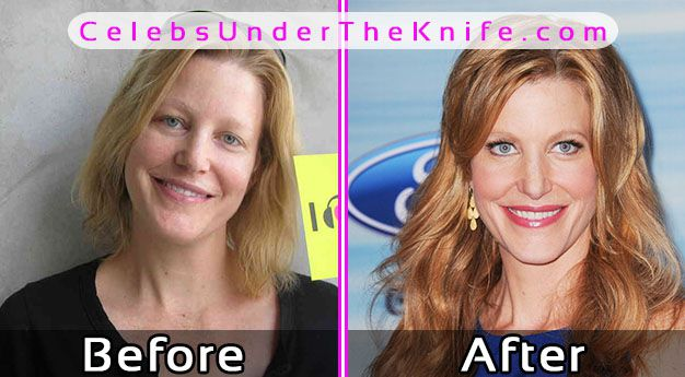 anna gunn plastic surgery before and after photo - 1