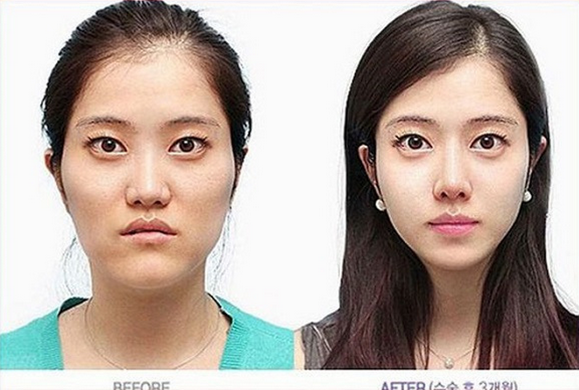 asian plastic surgery before and after photo - 1