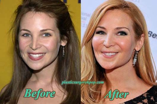 britney spears before and after plastic surgery photo - 1