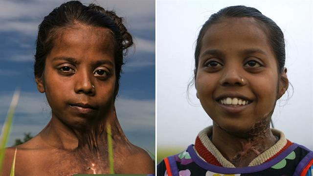 burn victims before and after plastic surgery photo - 1