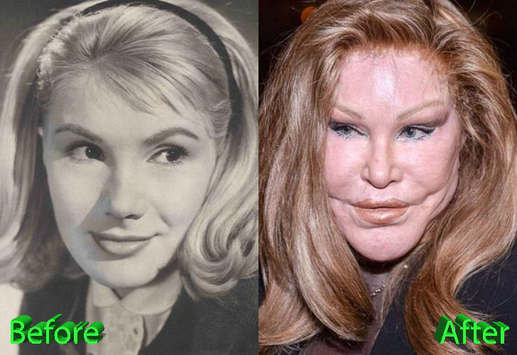 catwoman plastic surgery before and after photo - 1
