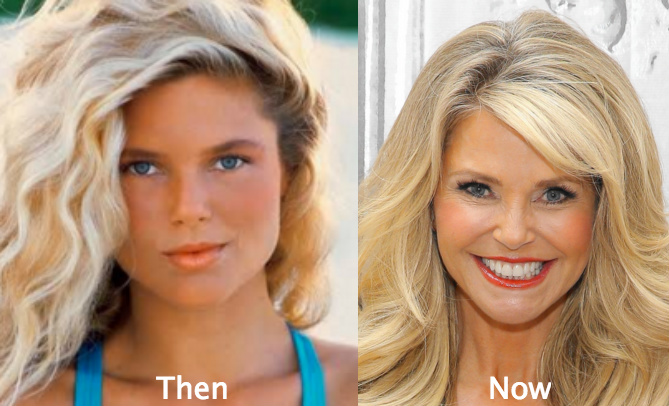 christie brinkley cosmetic surgery photo - 1