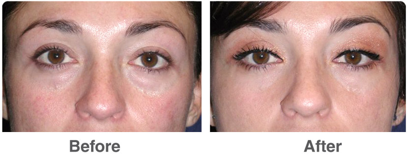 cosmetic surgery for eyes before and after photo - 1