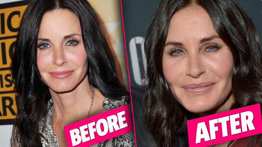 courtney cox cosmetic surgery photo - 1