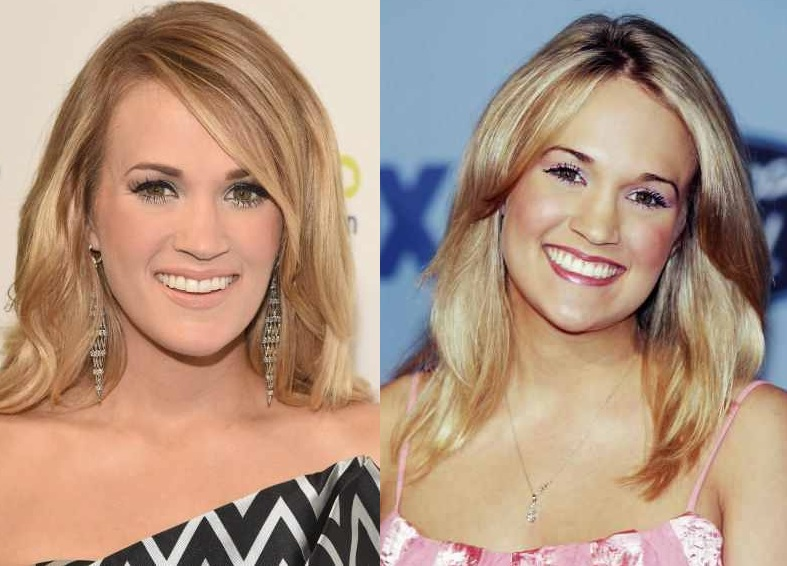 did carrie underwood have plastic surgery photo - 1