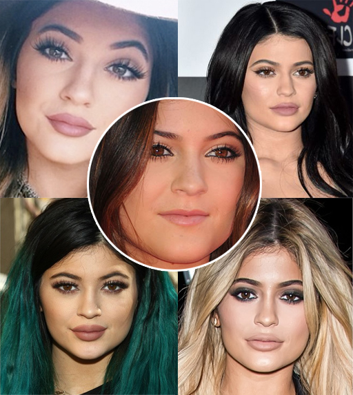 did kylie get plastic surgery photo - 1