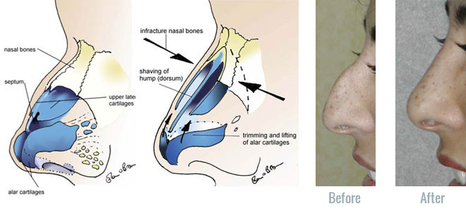 different types of plastic surgery photo - 1