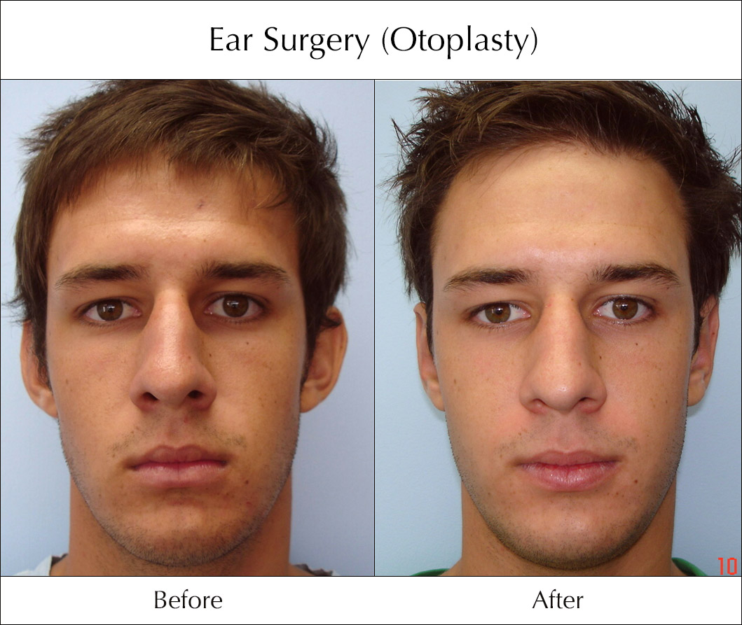 ear plastic surgery before and after photo - 1