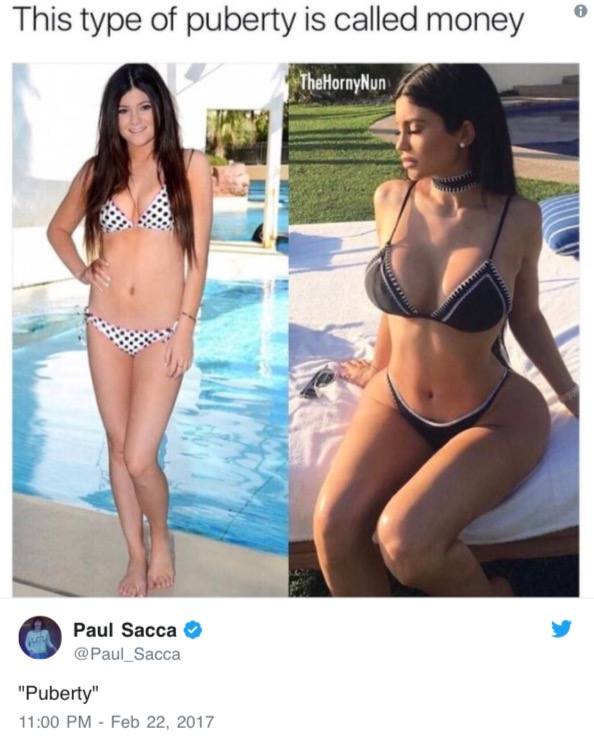 how much plastic surgery has kylie jenner had photo - 1
