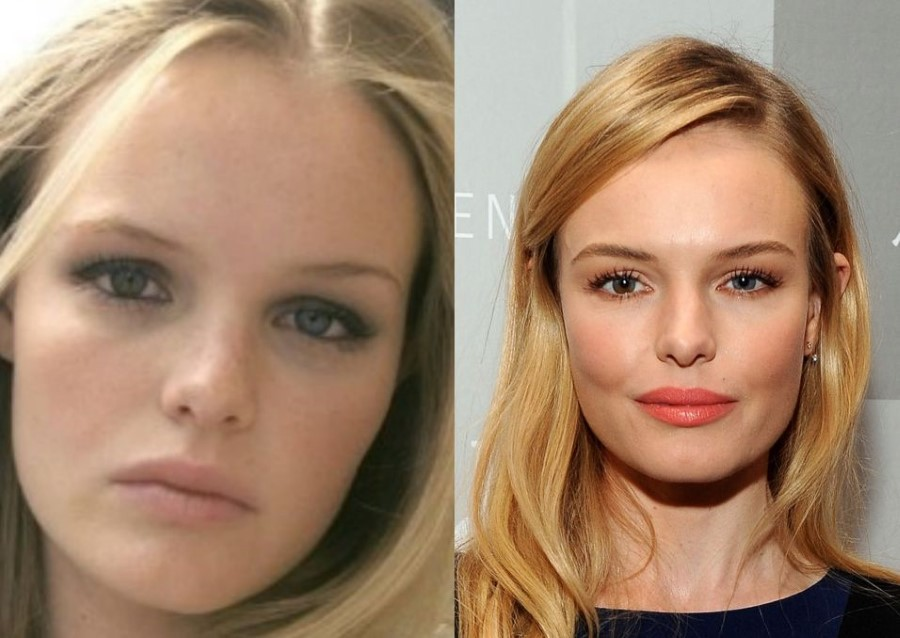 kate bosworth plastic surgery photo - 1