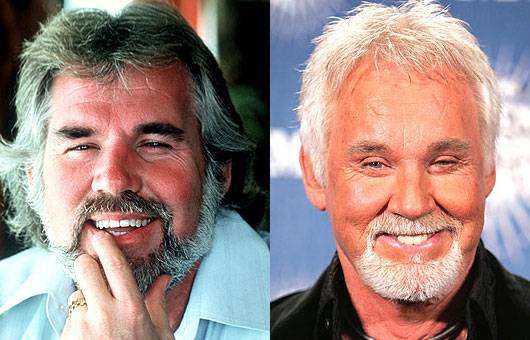 kenny rogers before and after cosmetic surgery photo - 1