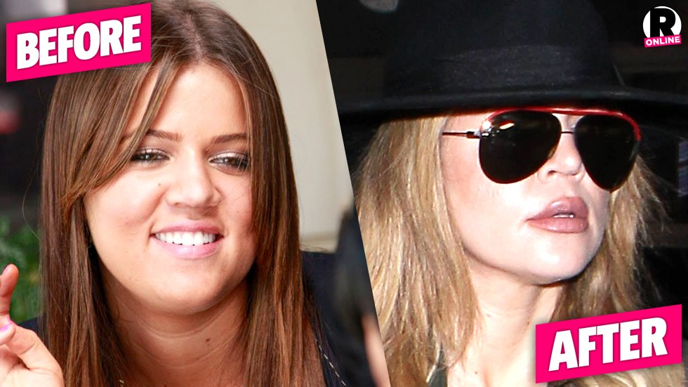khloe kardashian before and after plastic surgery photo - 1