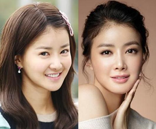 lee si young plastic surgery photo - 1