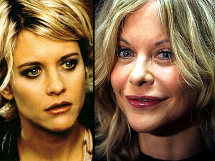 meg ryan plastic surgery photo - 1