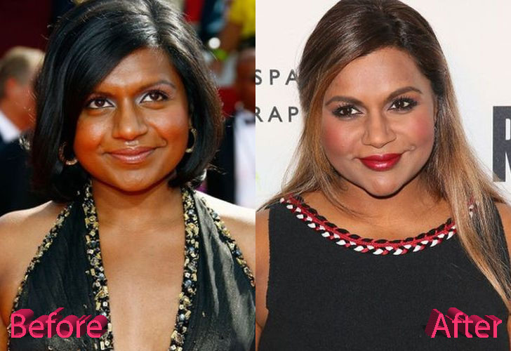 mindy kaling plastic surgery 2017 photo - 1