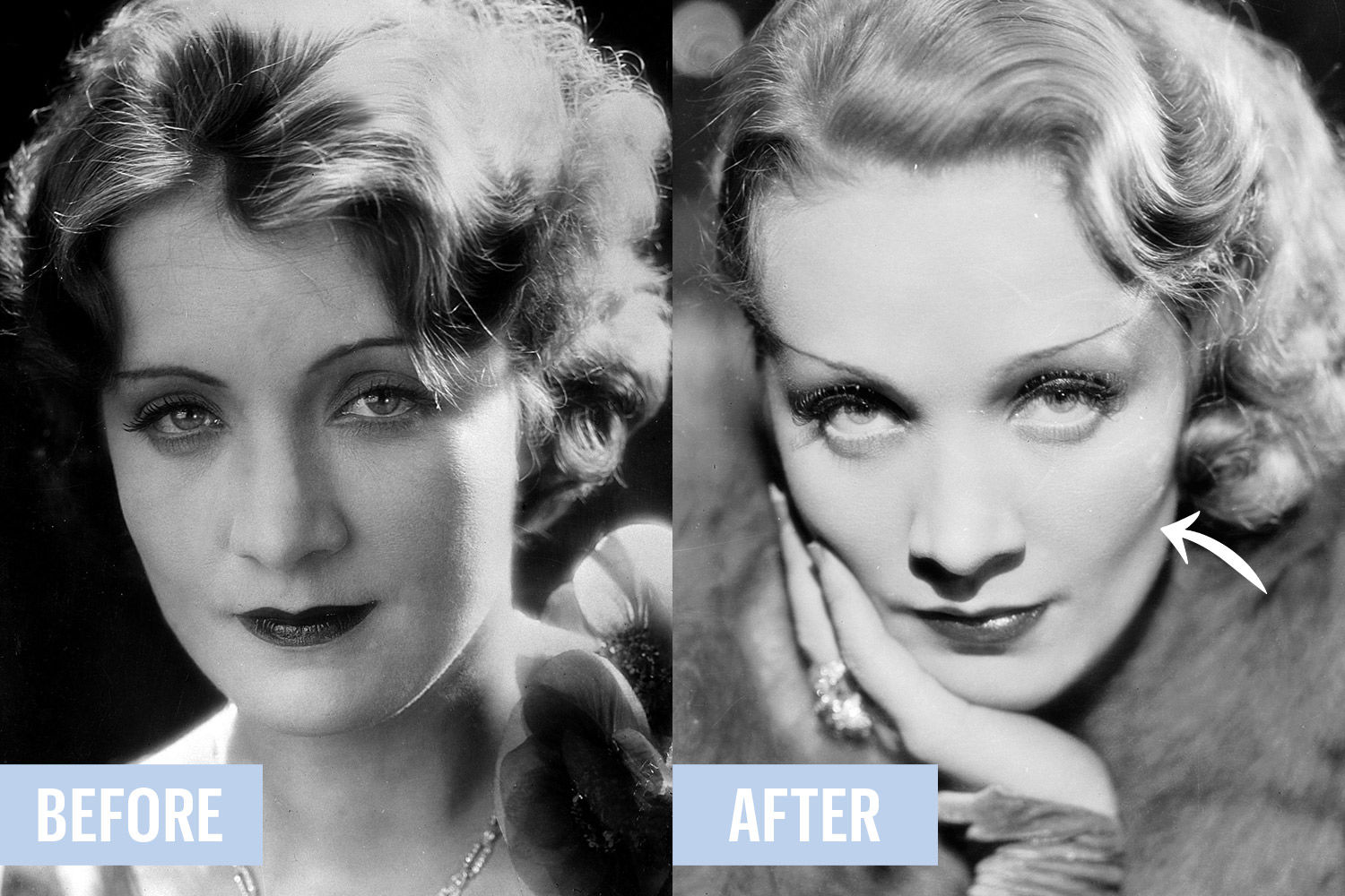 old hollywood plastic surgery photo - 1