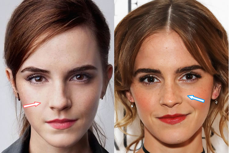 people with plastic surgery photo - 1
