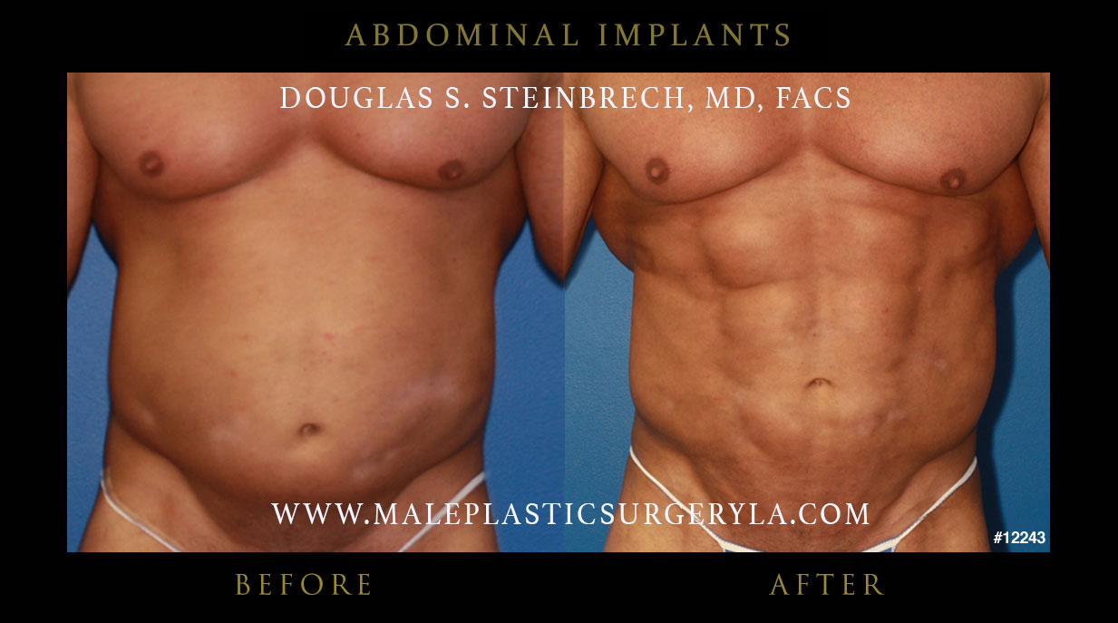plastic surgery before and after body photo - 1
