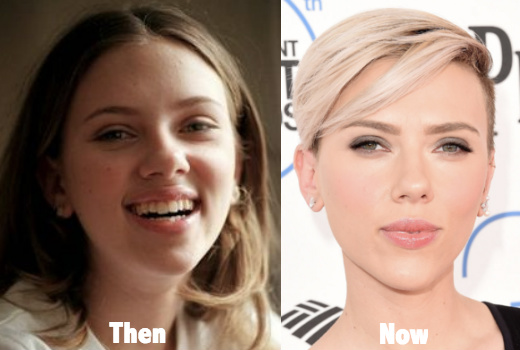 plastic surgery before and after nose photo - 1