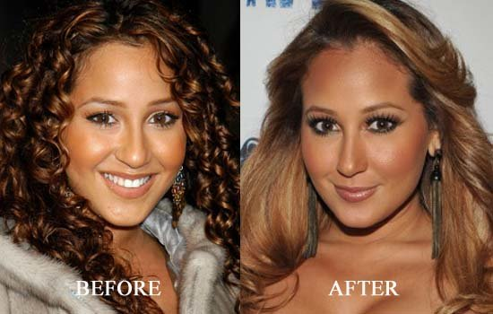 plastic surgery breast implants cost photo - 1