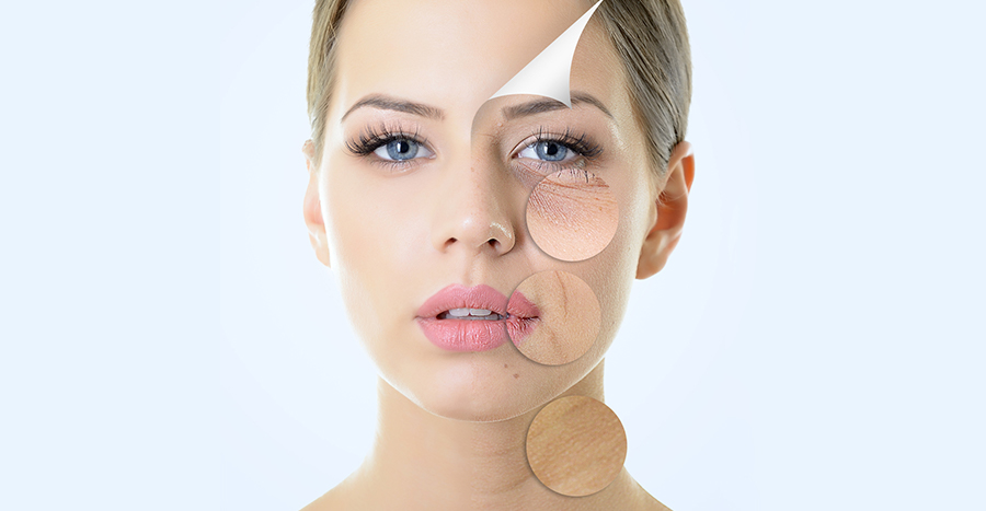 plastic surgery for acne photo - 1