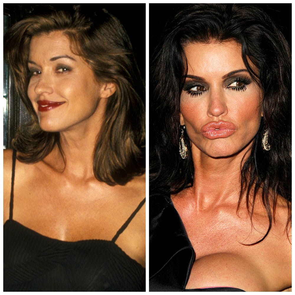 plastic surgery gone wrong photo - 1