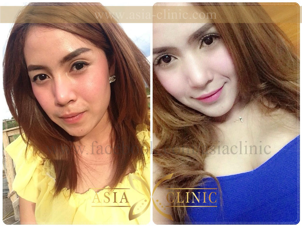 plastic surgery thailand photo - 1