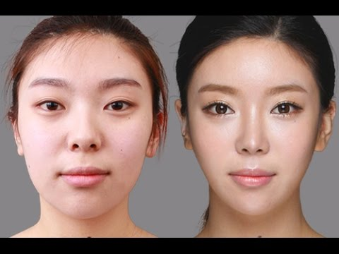 plastic surgery to slim face photo - 1