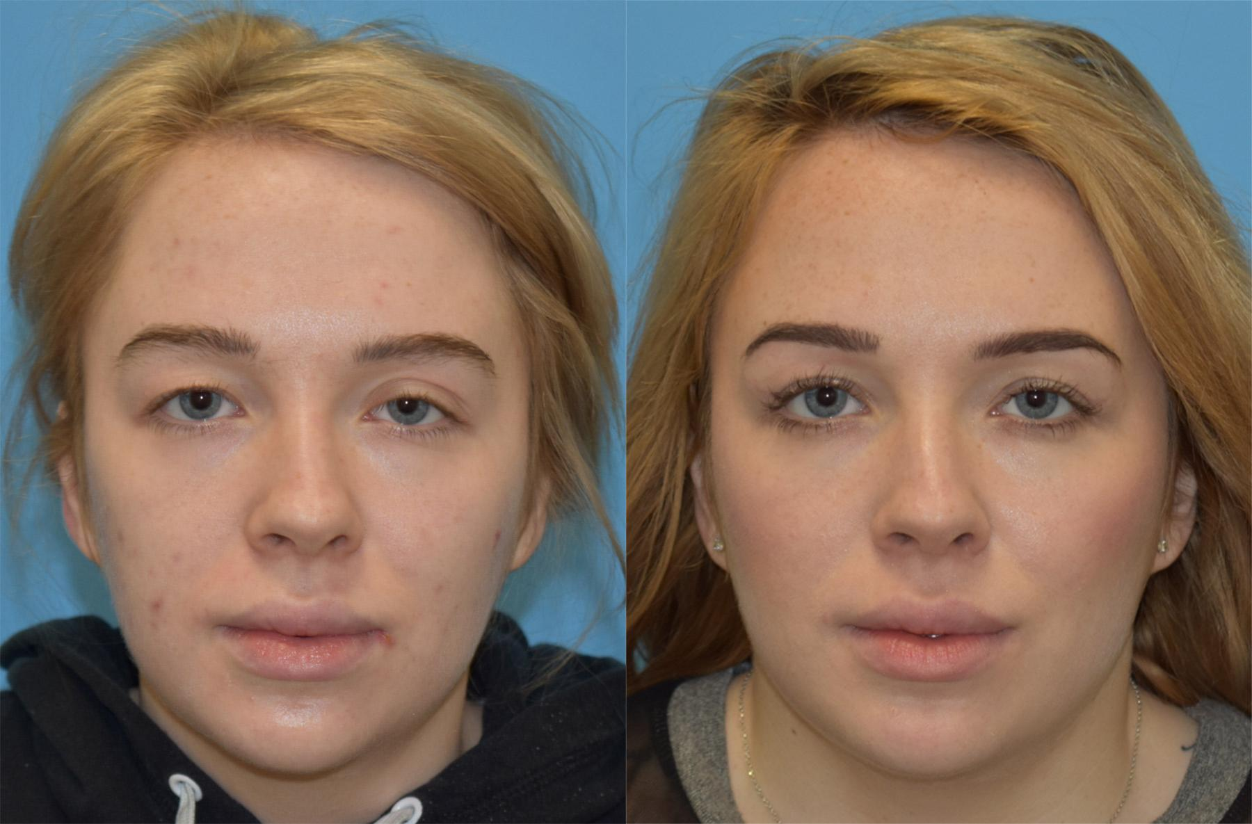 plastic surgery virginia beach photo - 1