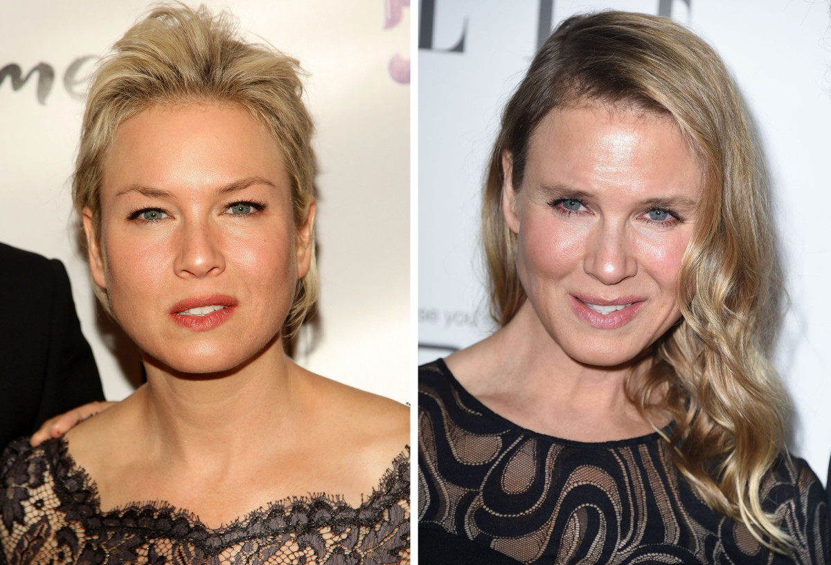 renee zellweger before and after plastic surgery photo - 1