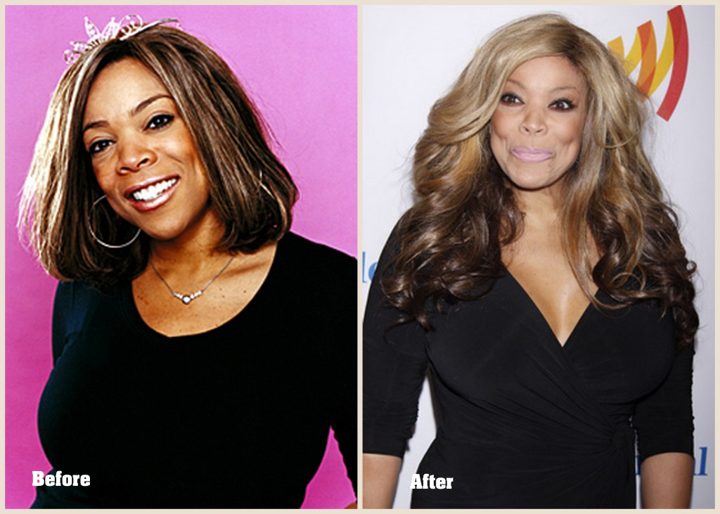 wendy williams before plastic surgery photo - 1
