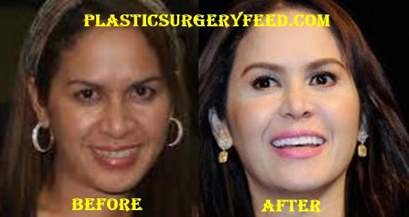 why is plastic surgery called plastic surgery photo - 1
